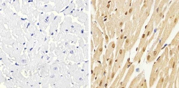 Immunohistochemistry (Formalin/PFA-fixed paraffin-embedded sections) - Anti-p38 (phospho T180 + Y182) antibody (ab4822)