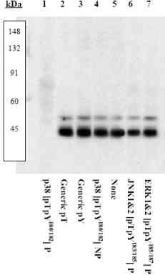 Western blot - Anti-p38 (phospho T180 + Y182) antibody (ab4822)