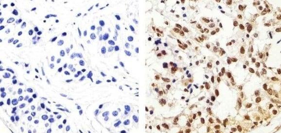 Immunohistochemistry (Formalin/PFA-fixed paraffin-embedded sections) - Anti-IRS1 (phospho Y896) antibody (ab4873)