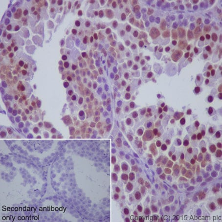 Immunohistochemistry (Formalin/PFA-fixed paraffin-embedded sections) - Anti-p73 antibody [EP436Y] (ab40658)
