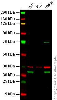 Western blot - Anti-Emerin antibody (ab40725)