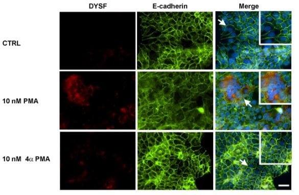 Immunocytochemistry/ Immunofluorescence - Anti-E Cadherin antibody [EP700Y] - Intercellular Junction Marker (ab40772)