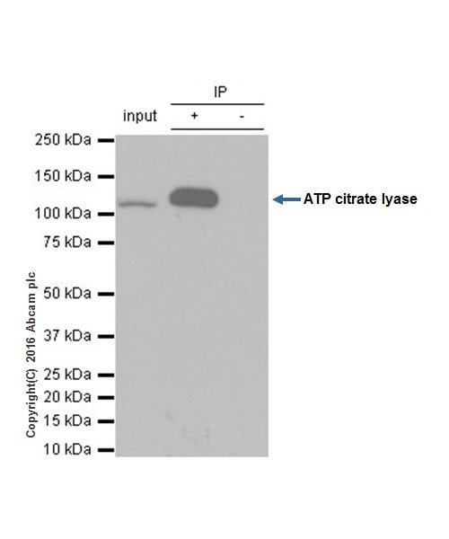 Immunoprecipitation - Anti-ATP citrate lyase antibody [EP704Y] (ab40793)