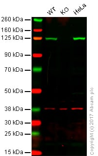 Western blot - Anti-ATP citrate lyase antibody [EP704Y] (ab40793)