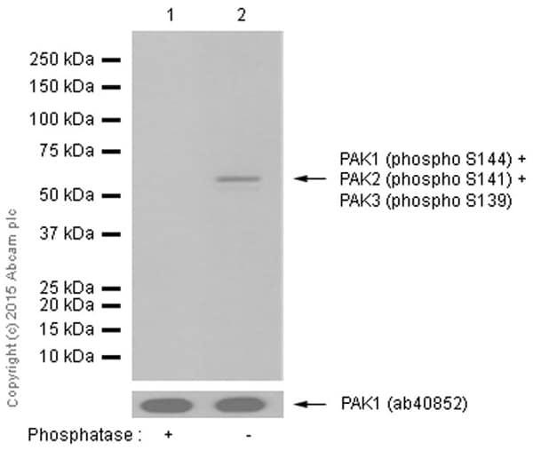 Western blot - Anti-PAK1 (phospho S144) + PAK2 (phospho S141) + PAK3 (phospho S139) antibody [EP656Y] (ab40795)