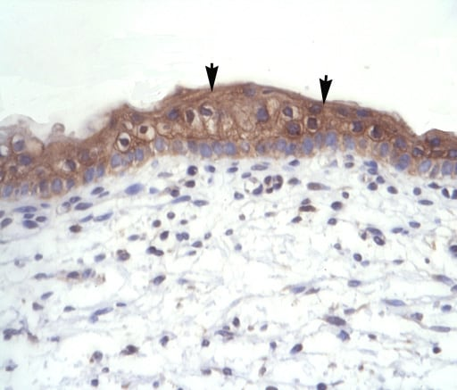 Immunohistochemistry (Formalin/PFA-fixed paraffin-embedded sections) - Anti-Thyroid Hormone Receptor alpha 1+2 antibody (ab42565)