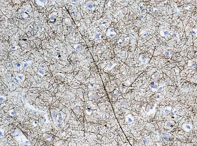 Immunohistochemistry (Formalin/PFA-fixed paraffin-embedded sections) - Anti-CNPase antibody [mAbcam 44289] (ab44289)