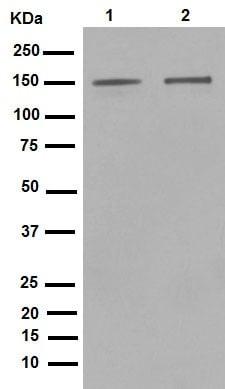 Western印迹-抗ROCK1抗体[EP786Y](AB45 171)