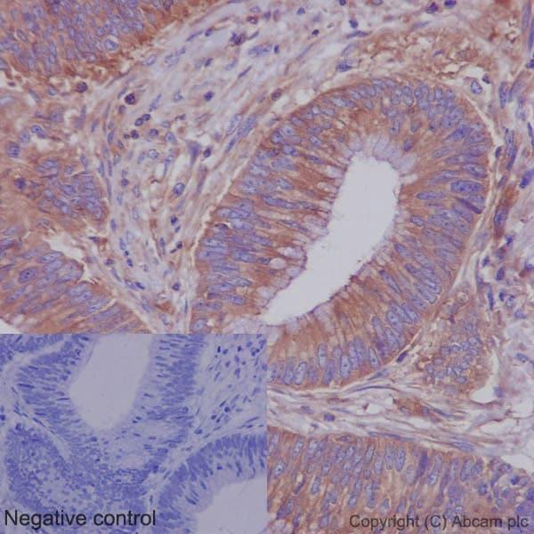 免疫组化(福尔马林/PFA固定石蜡切片)抗ROCK1抗体[EP786Y](AB45 171)