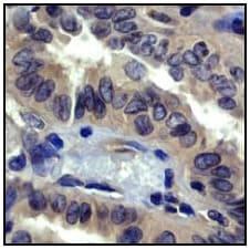 免疫组织化学(福尔马林/PFA固定石蜡包埋切片)-抗ROCK1抗体[EP786Y](ab45171)