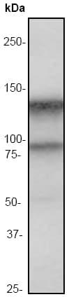 Western blot - Anti-Interferon alpha/beta receptor 1 antibody [EP899Y] (ab45172)