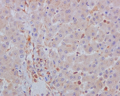 Immunohistochemistry (Formalin/PFA-fixed paraffin-embedded sections) - Anti-Acetyl Coenzyme A Carboxylase antibody [EP687Y] (ab45174)