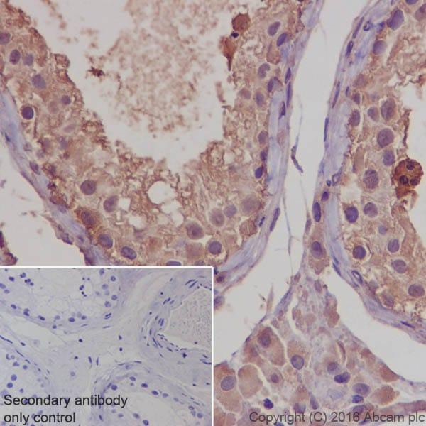 免疫组织化学(福尔马林/PFA固定石蜡切片)-抗钙调素1/2/3抗体[EP799Y]-C末端(ab45689)