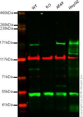 Western blot - Anti-C5 / C5a antibody (ab46168)