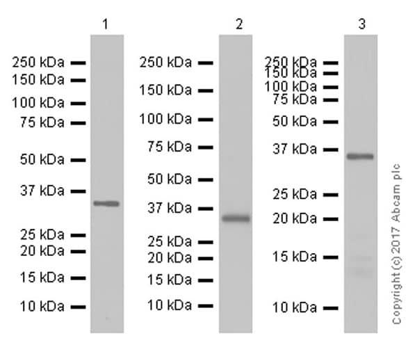 免疫印迹-抗Calponin 1抗体[EP798Y](ab46794)