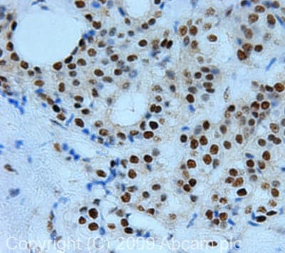 Immunohistochemistry (Formalin/PFA-fixed paraffin-embedded sections) - Anti-c-Myc (phospho Y74) antibody (ab46848)