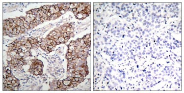 Immunohistochemistry (Formalin/PFA-fixed paraffin-embedded sections) - Anti-EGFR (phospho Y1092) antibody (ab47264)