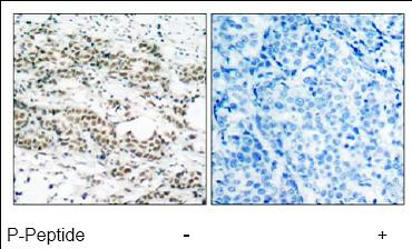 Immunohistochemistry (Formalin/PFA-fixed paraffin-embedded sections) - Anti-FOXO4 / AFX (phospho S197) antibody (ab47278)