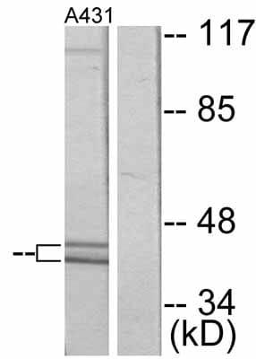 Western blot - Anti-ERK1 (phospho T202) antibody (ab47310)