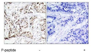 Immunohistochemistry (Formalin/PFA-fixed paraffin-embedded sections) - Anti-JNK1 (phospho T183) antibody (ab47337)