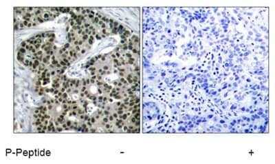 Immunohistochemistry (Formalin/PFA-fixed paraffin-embedded sections) - Anti-HSF1 (phospho S303) antibody (ab47369)