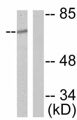 Western blot - Anti-NF2 / Merlin (phospho S518) antibody (ab47378)