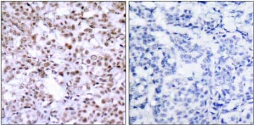 Immunohistochemistry (Formalin/PFA-fixed paraffin-embedded sections) - Anti-Chk2 antibody (ab47433)