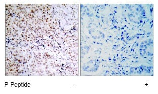 Immunohistochemistry (Formalin/PFA-fixed paraffin-embedded sections) - Anti-Rb (phospho S795) antibody (ab47474)