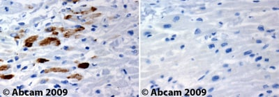 Immunohistochemistry (Formalin/PFA-fixed paraffin-embedded sections) - Anti-Chk1 antibody (ab47574)