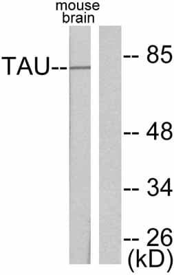 Western blot - Anti-Tau antibody (ab47579)