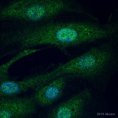 Immunocytochemistry/ Immunofluorescence - Anti-Perilipin 3 antibody (ab47638)