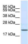Western blot - Anti-SCN3B antibody (ab48552)
