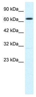 Western blot - Anti-KCNN2 antibody (ab48817)