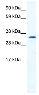 Western blot - Anti-HOXB1 antibody (ab48821)