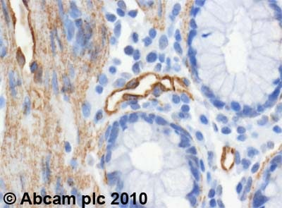 Immunohistochemistry (Formalin/PFA-fixed paraffin-embedded sections) - Anti-PTRF antibody (ab48824)