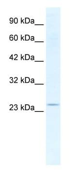 Western blot - Anti-SOX14 antibody (ab49047)