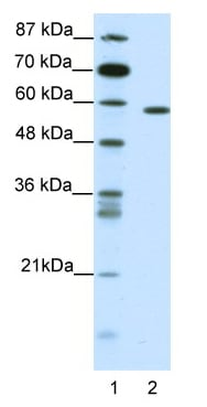 Western blot - Anti-NR1D2 antibody (ab49072)