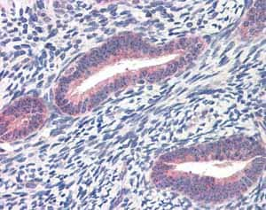 Immunohistochemistry (Formalin/PFA-fixed paraffin-embedded sections) - Anti-Twist antibody (ab49254)