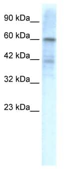 Western blot - Anti-Kv4.3 antibody (ab49348)