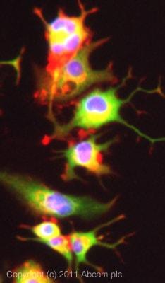 Immunocytochemistry/ Immunofluorescence - Calbindin antibody - Neuronal Marker (ab49899)