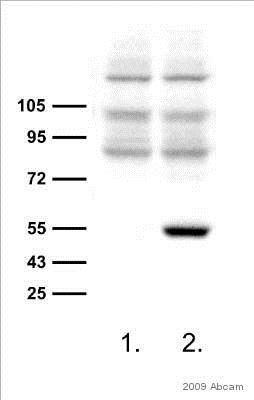 Western blot - Anti-6X His tag® antibody [4D11] (ab5000)