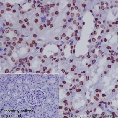 Immunohistochemistry (Formalin/PFA-fixed paraffin-embedded sections) - Anti-RNA polymerase II CTD repeat YSPTSPS (phospho S2) antibody (ab5095)