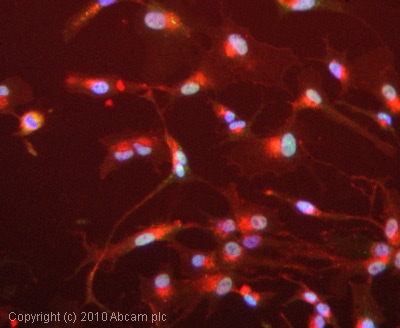 Immunocytochemistry/ Immunofluorescence - Anti-EIF2S1 antibody [EIF2a] (ab5369)