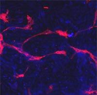 Immunocytochemistry/ Immunofluorescence - Eph receptor A4 antibody (ab5389)