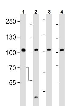 Western blot - Anti-Eph receptor A4/SEK antibody (ab5396)