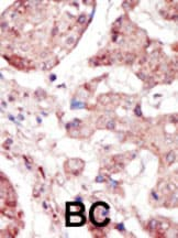 Immunohistochemistry (Formalin/PFA-fixed paraffin-embedded sections) - Anti-Eph receptor A5 antibody (ab5397)
