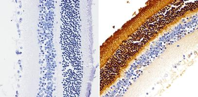 Immunohistochemistry (Formalin/PFA-fixed paraffin-embedded sections) - Anti-Rhodopsin antibody [1D4] (ab5417)
