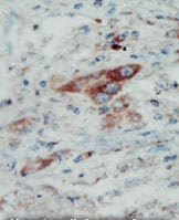 Immunohistochemistry (Formalin/PFA-fixed paraffin-embedded sections) - Anti-Eph receptor B2 antibody (ab5418)