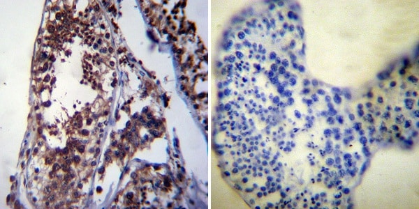 Immunohistochemistry (Formalin/PFA-fixed paraffin-embedded sections) - Anti-Hsp70 antibody [3A3] (ab5439)
