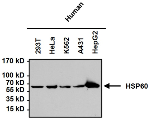 Western blot - Anti-Hsp60 antibody [4B9/89] (ab5478)